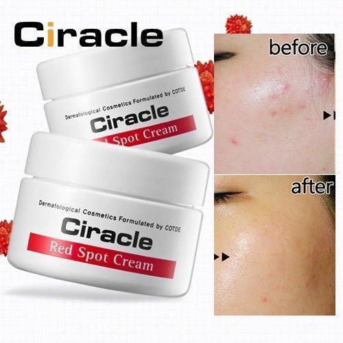 Kem Ciracle Red Spot Cream có tác dụng trị mụn, làm mờ vết thâm hiệu quả (ảnh: internet).