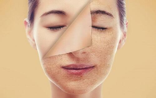 Làn da khô, sần sùi khiến bạn khó khăn trong việc dưỡng da???