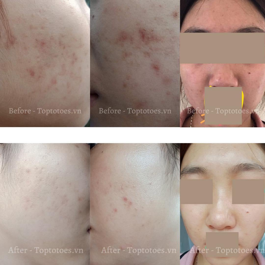 Hình ảnh trước và sau khi sử dụng sản phẩm (Nguồn: Internet)