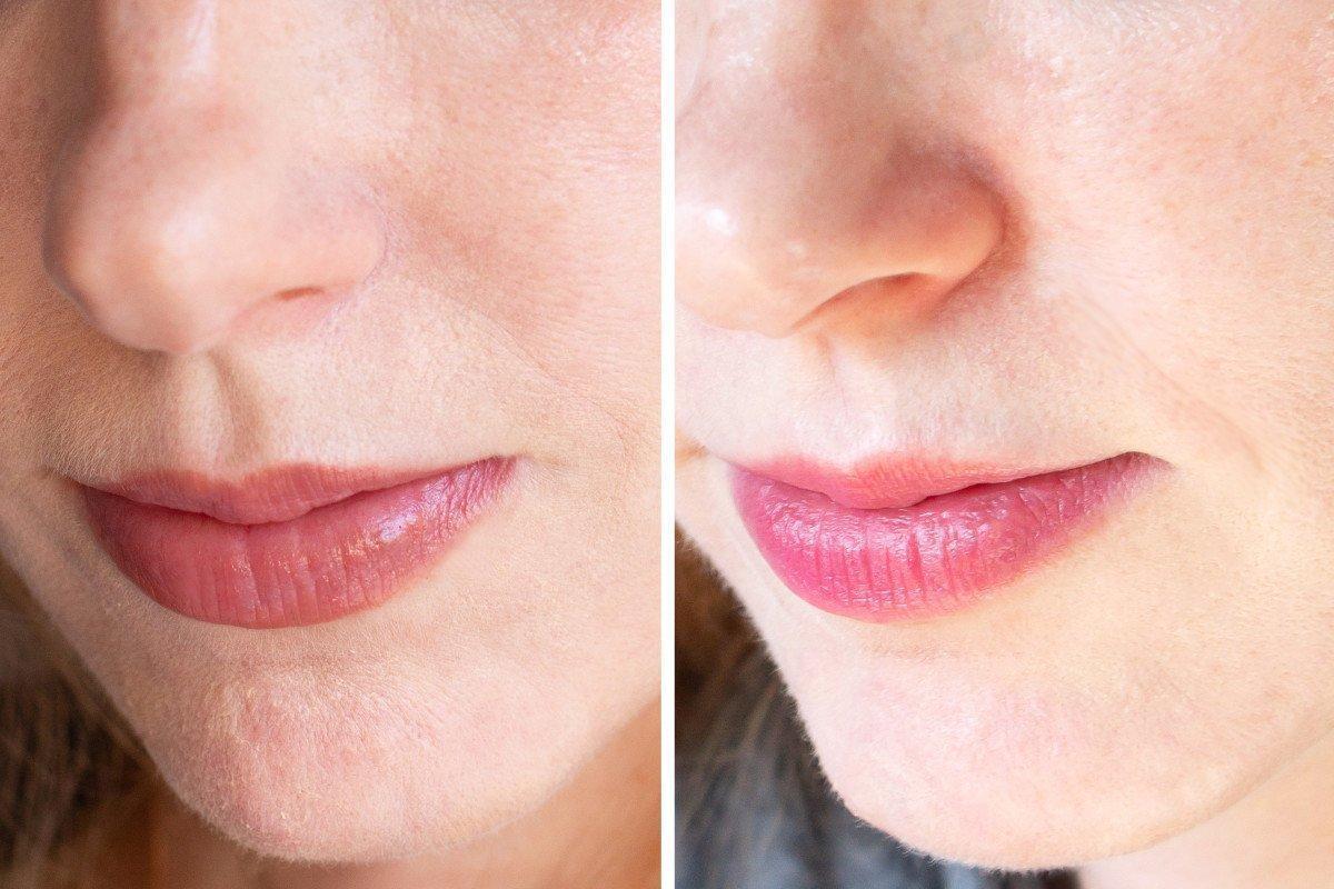 Da khỏe mạnh, đều màu và căng bóng hơn khi kiên trì sử dụng retinol A313 Pommade. (nguồn: Internet)