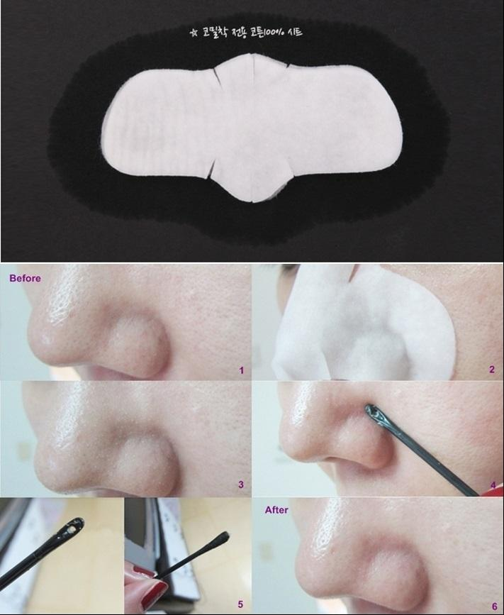 ciracle goodbye blackhead